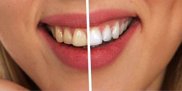Weiße Zähne bekommen – Was kann ich gegen Verfärbungen tun?